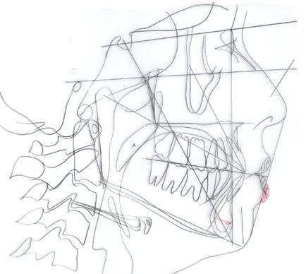 グラフィックス1 - コピー
