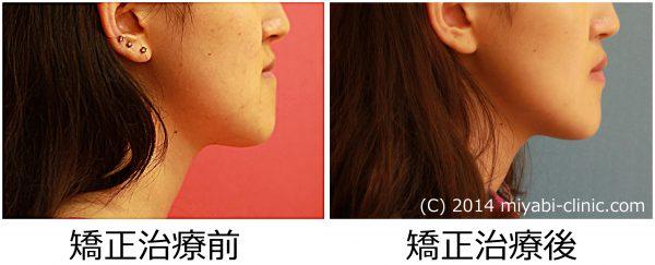 0088治療前後②右側面 - コピー