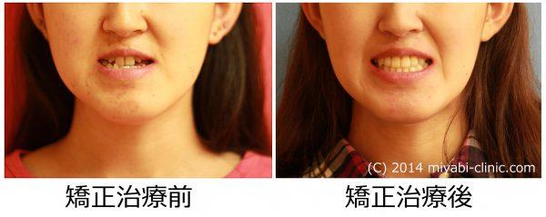 0088治療前後③スマイル - コピー - コピー