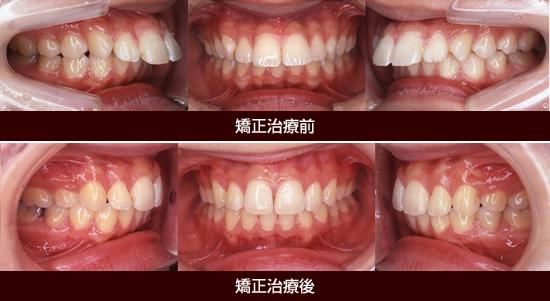顎前突症(じょうがくぜんとつしょう)[出っ歯]