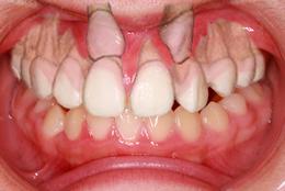 歯科用CTスキャナ