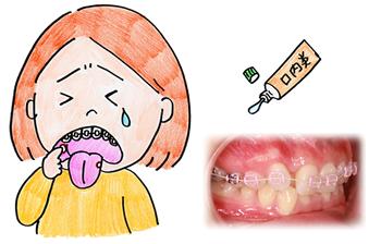 装置による口内炎やトラブルが無いため、快適です。